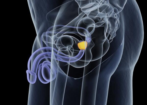 curar inflamacion de la prostata