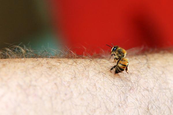 Insectos que pican - Abejas