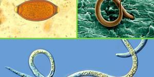 Qué son los nematodos: características, clasificación y ejemplos